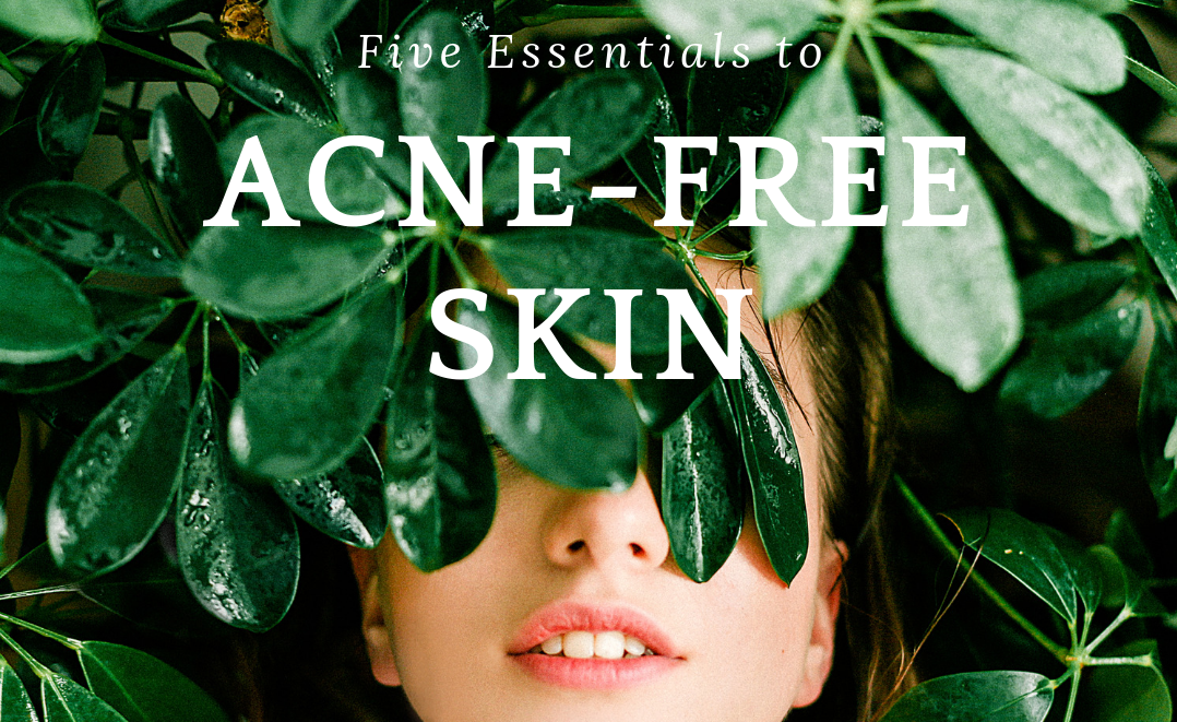 Five Essentials for Acne-Free Skin